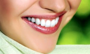 Teeth Whitening with Consultation