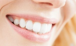 Dental Scale