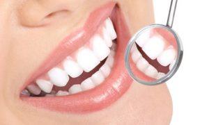 Dental Package