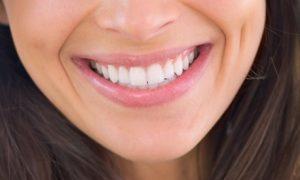 One Dental Veneer