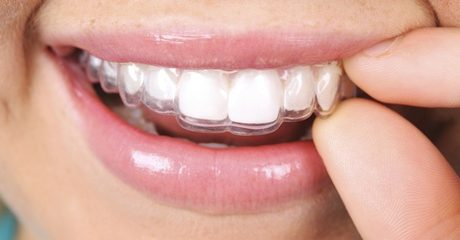Invisible Braces Consultation