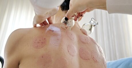 Hijama or Dry Cupping Session